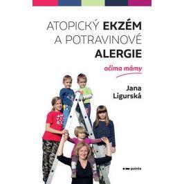 Atopický ekzém a potravinové alergie očima mámy | Jana Ligurská